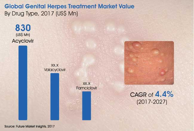 genital-herpes-treatment-market.jpg