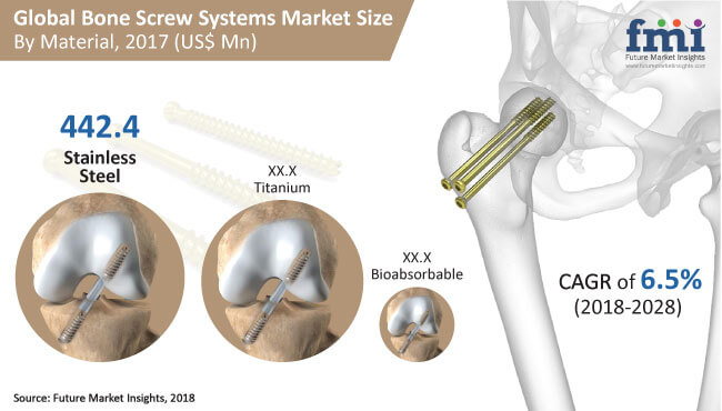 Bone Screw Systems Market img