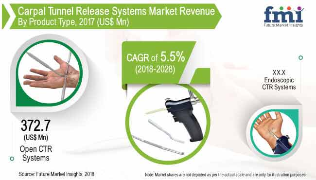 Carpal Tunnel Release Market