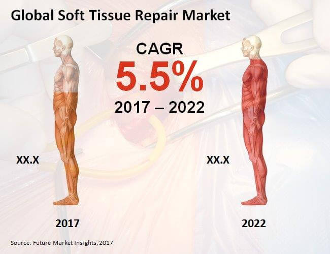 Global Soft Tissue Repair Market