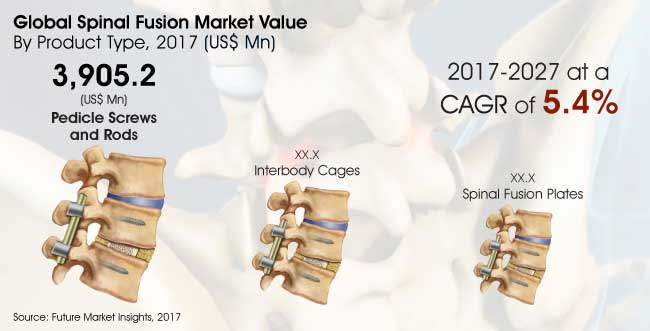 Report Spinal Fusion Market_Image for Preview Analysis