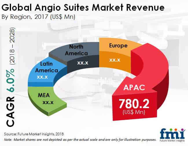 angio suites market