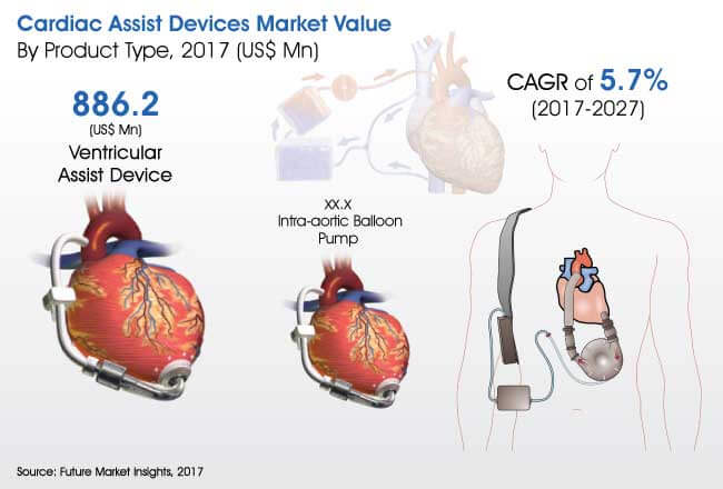 cardiac assist devices market