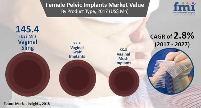 female-pelvic-implants-market