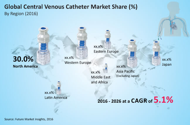 global central venous catheter market_image for preview analysis