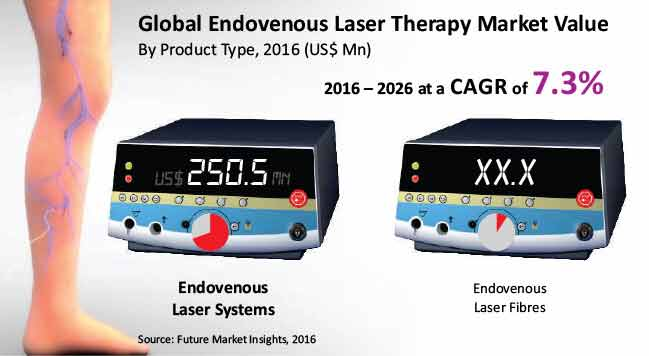 global endovenous laser therapy market