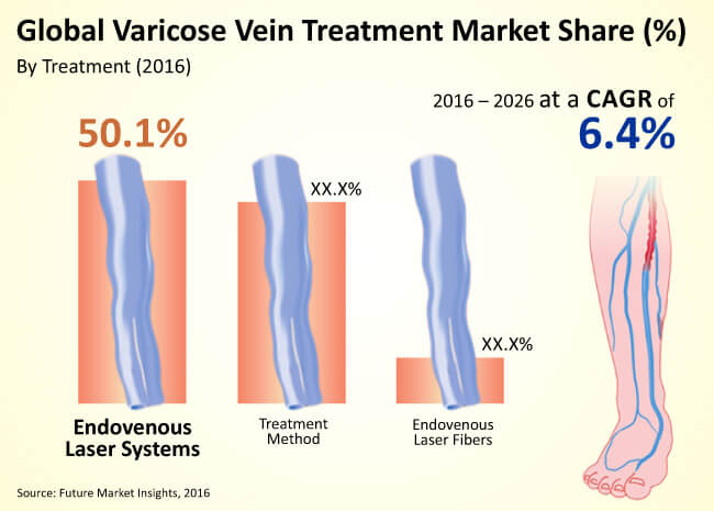 global varicose vein treatment market
