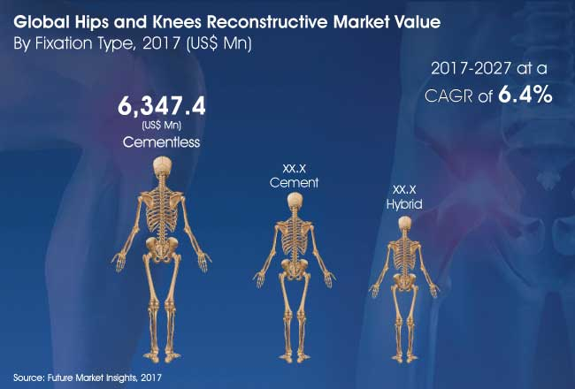 hips and knees reconstructive market