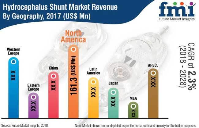 hydrocephalus shunt market