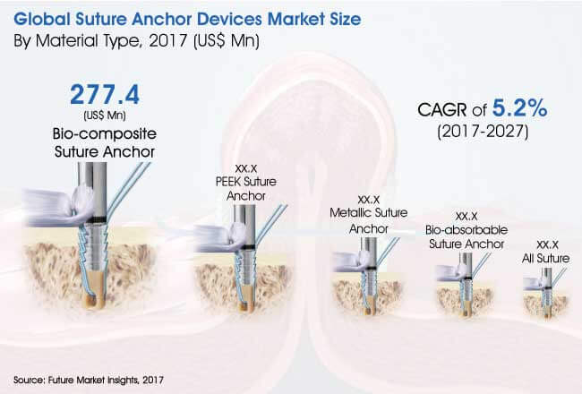 suture anchor devices market