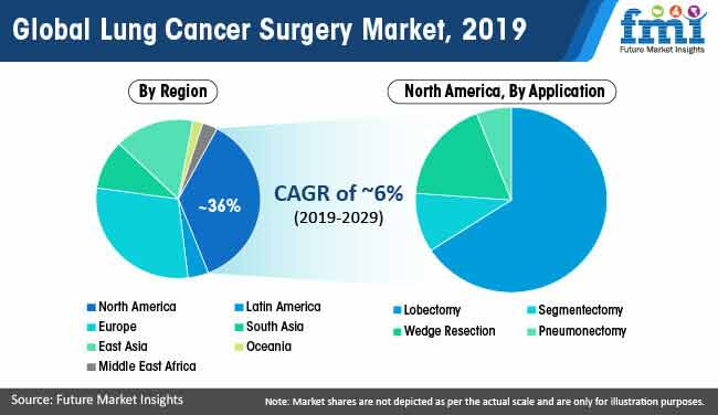 global lung cancer surgery market 2019